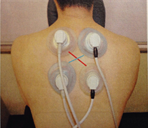 高電圧電気刺激療法